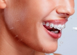 6 Awesome Water Flossers to Keep Your Teeth and Braces Clean – Reviews and Buying Guide
